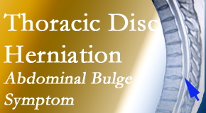Gormish Chiropractic & Rehabilitation cares for thoracic disc herniation that for some patients prompts abdominal pain.