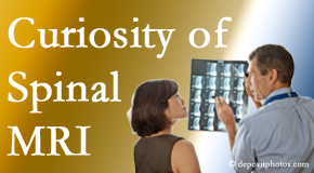Carrolltown MRIs for spinal stenosis may be revealing…or puzzling.