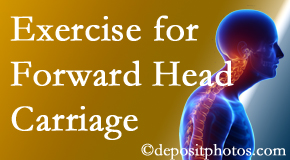 Carrolltown chiropractic treatment of forward head carriage is two-fold: manipulation and exercise.