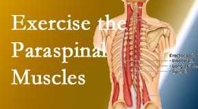 Gormish Chiropractic & Rehabilitation describes the importance of paraspinal muscles and their strength for Carrolltown back pain relief.