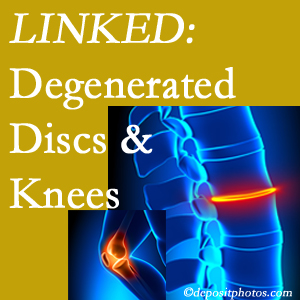 Degenerated discs and degenerated knees are not such strange bedfellows. They are seen to be related. Carrolltown patients with a loss of disc height due to disc degeneration often also have knee pain related to degeneration.