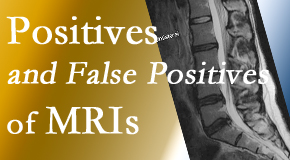 Gormish Chiropractic & Rehabilitation carefully decides when and if MRI images are needed to guide the Carrolltown chiropractic treatment plan.
